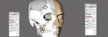 Software DICOM D2P Medicina Dental Odontologia 3Dsystems escaner 3d colombia venezuela